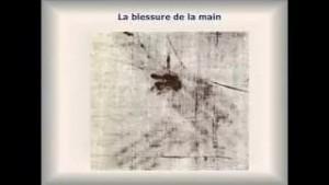 Le Linceul Physiologie des sévices infligés à Jésus